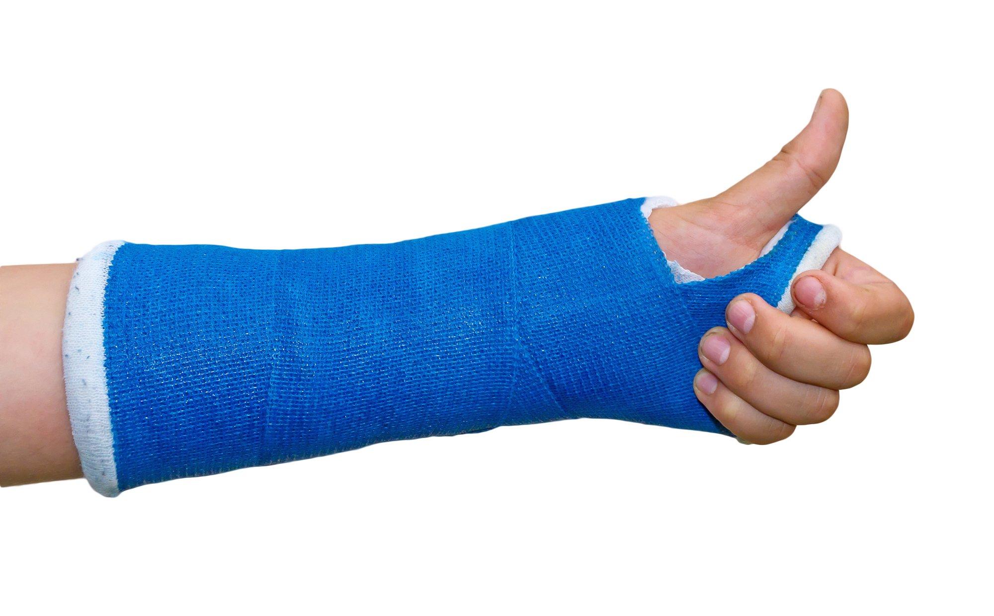 Doktore, znam da sam slomio ruku, ali je li mogu ipak na planinarenje…?